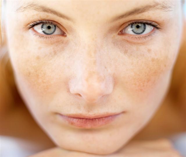 Uneven Skin tone Treatment, pigmentation, Brightening, Hyperpigmentation