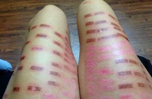 laser skin burn victim