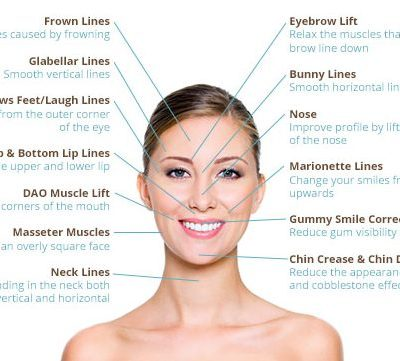 injectables-treatment-areas