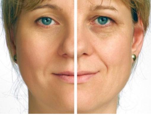 EndyMed-3Deep-Skin